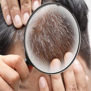استنساخ الشعر في دبي