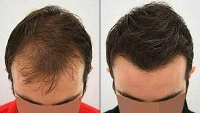 أفضل زراعة شعر في دبي وأبو ظبي