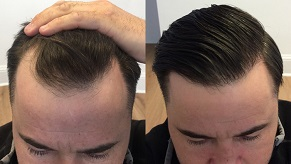 زراعة الشعر في دبي وأبو ظبي