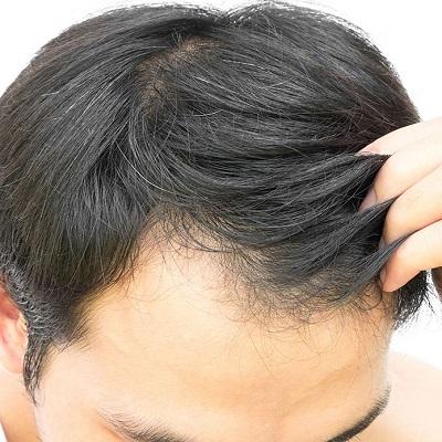 أسباب تساقط الشعر الوقاية والعلاج الممكنة - ديناميك دبي