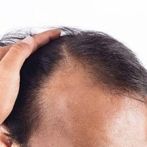 زراعة الشعر الدائم في حالات الصلع الذكوري