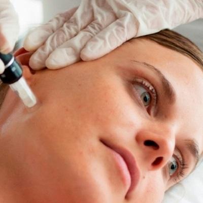 علاج الديرما بن المايكرو نيدل في دبي وأبو ظبي | التكلفة والصفقات