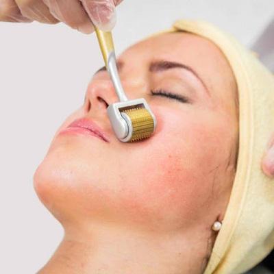 علاج الديرما رولر في دبي وأبو ظبي والشارقة | تكلفة علاج ديرمارولر