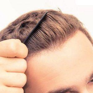 زراعة الشعر التركي في دبي
