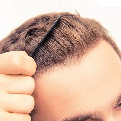 مركز زراعة الشعر التركي في دبي وأبو ظبي؟ | المركز التركي