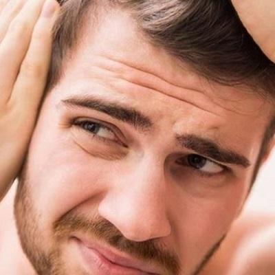 أسباب تساقط الشعر عند المراهقين والمراهقات - ديناميك دبي الإمارات العربية المتحدة