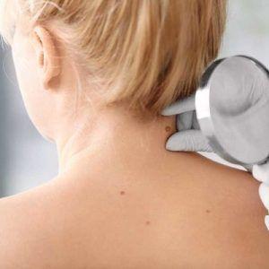 العلاج والوقاية من الزوائد الجلدية