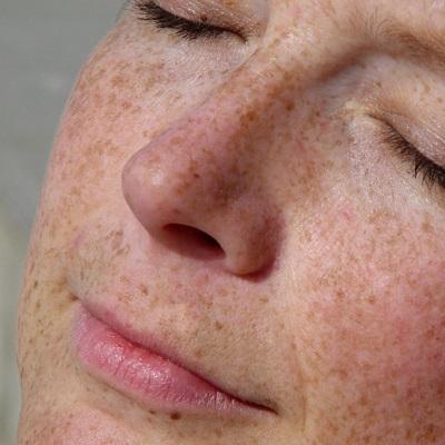 علاج تصبغ الجلد في دبي وأبو ظبي والشارقة تكلفة علاج تصبغ الجلد