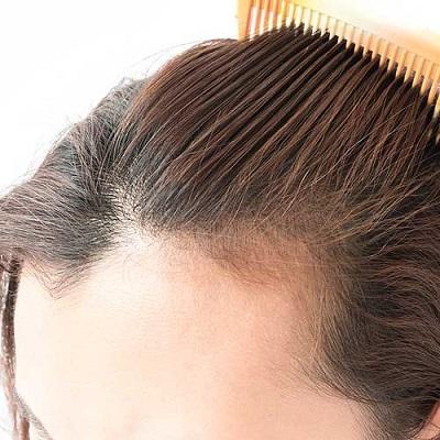 كيفية زيادة معدل نمو الشعر بعد زراعة الشعر