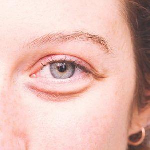 ما هي أفضل طريقة لإزالة أكياس العين؟