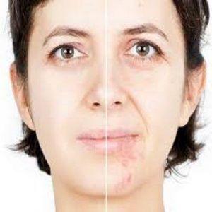 أفضل جراحة لإزالة ندبات الوجه