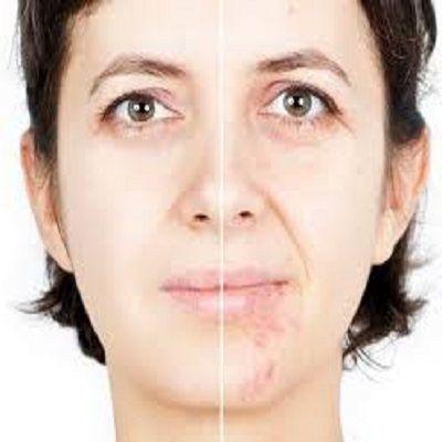 أفضل جراحة إزالة ندبات الوجه في دبي- دايناميك كلينيك - الامارات