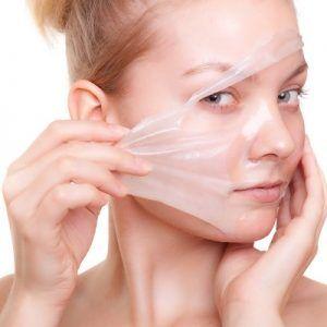 تلون الجلد بعد التقشير الكيميائي