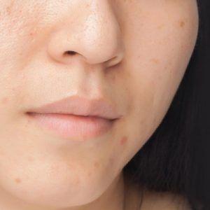 كيفية التخلص من البقع الداكنة على البشرة الداكنة