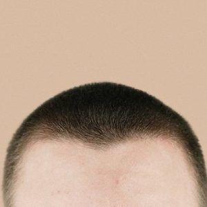 زراعة الشعر بالاقتطاف وفوائدها المتعددة
