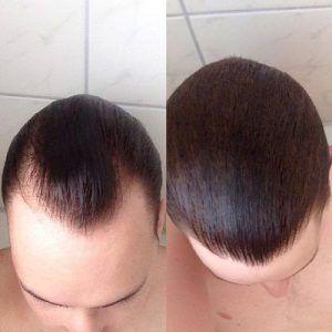 فيناسترايد لتساقط الشعر في دبي