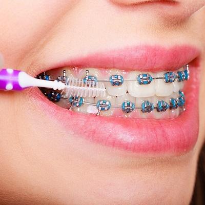 علاج تقويم الأسنان المبكر في دبي وأبو ظبي تكلفة تقويم الأسنان المبكرة